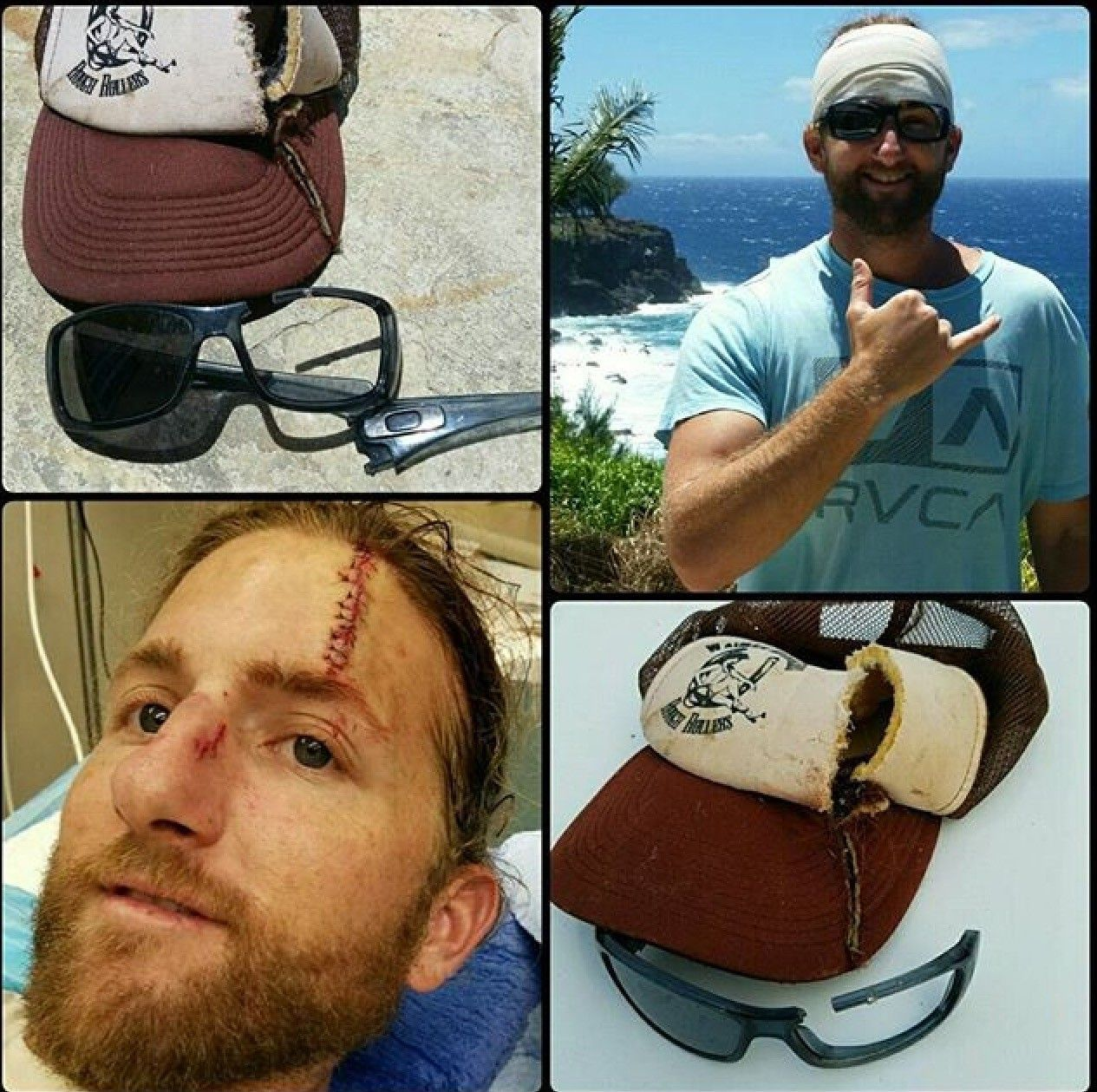 Has A Pair Of Oakley Sunglasses Ever Saved You From Possible Eye Injury? - image.jpeg